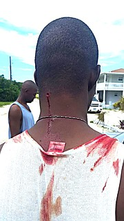 Images provided to The Tribune reportedly showing the injuries suffered by the man shot by police in Eleuthera.