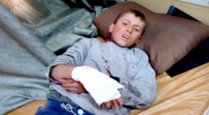 A boy laying on a bed with an injured hand after a missile attack on a hospital in Azaz, Aleppo, Syria, today in this still image taken from a video on a social media website.