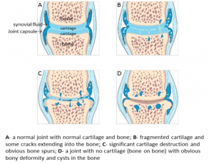 ArthritisXProgression.jpg