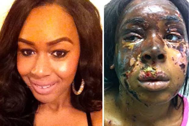 Oni Naomi, Antes y Después del ataque
