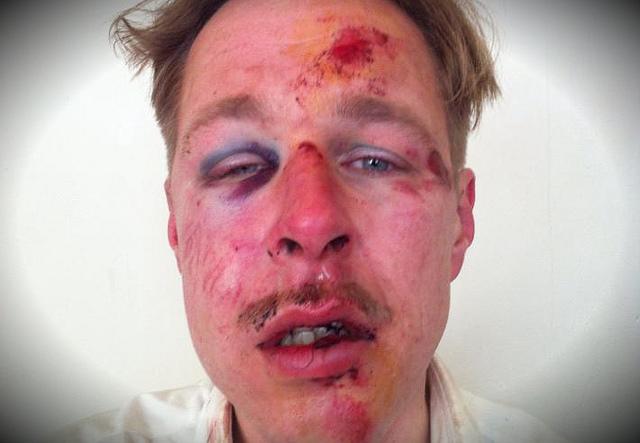 gay-man-beaten-by-muslims-in-paris-11.4.2013