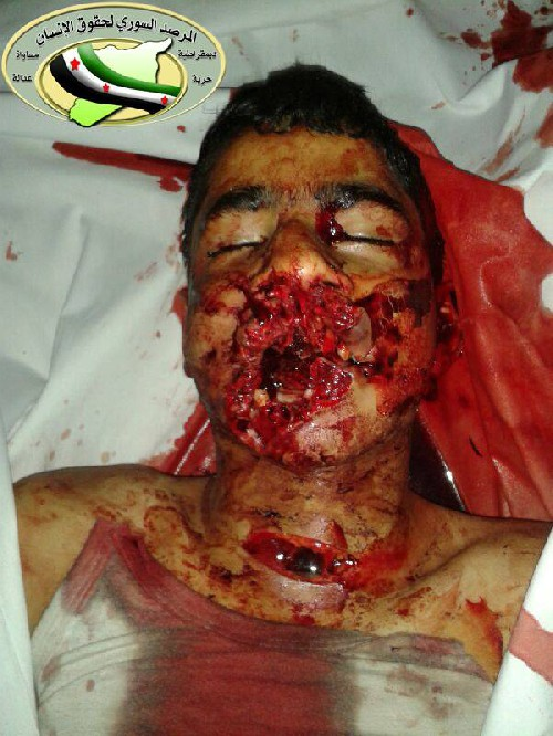 Photo of child executed by islamist rebels in Aleppo