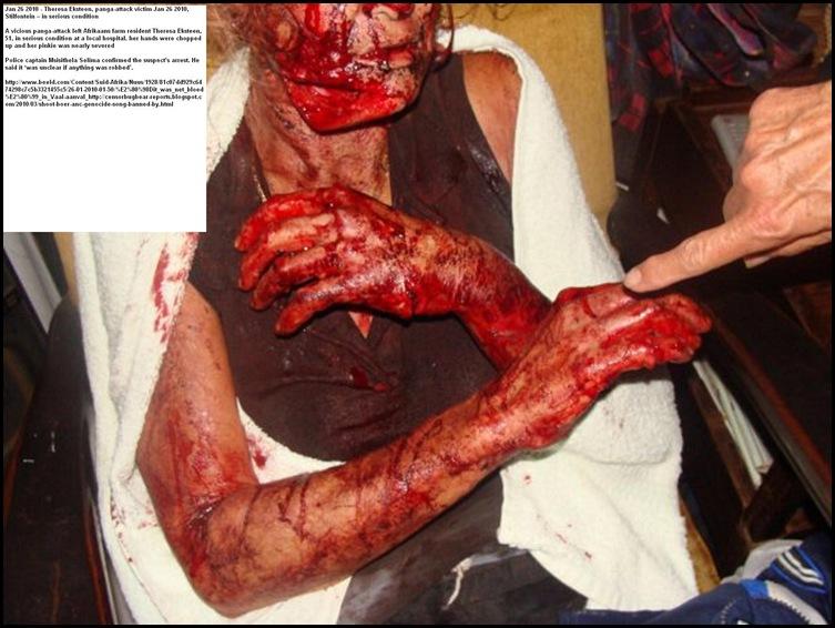 Theresa Eksteen sobreviviente de un ataque panga Jan262010 Stilfontein granja 51 condition_thumb grave [3]
