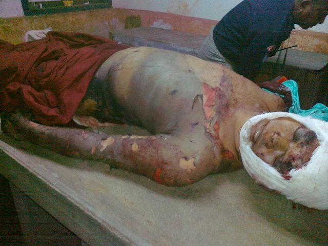 Buddhist Monk burned with acid, slashed with knives, and had his genitals cut off by Muslims