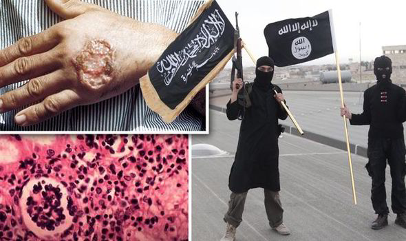 Islamic-State-Raqqa-flesh-eating-disease-567597