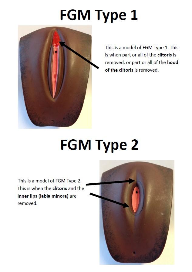 FGM-Type-1-+-2-
