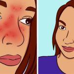 אלה הסימנים ותסמינים של רוזציאה וכיצד לטפל בה