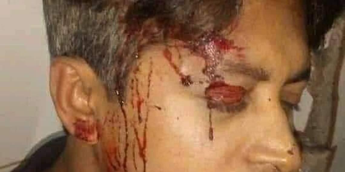 রাতের আঁধারে ববি শিক্ষার্থীদের ওপর হামলায় আহত অর্ধশত: প্রতিবাদে মহাসড়ক অবরোধ