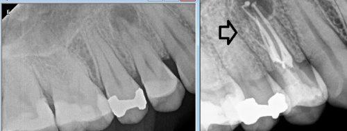 4 canal upper premolar