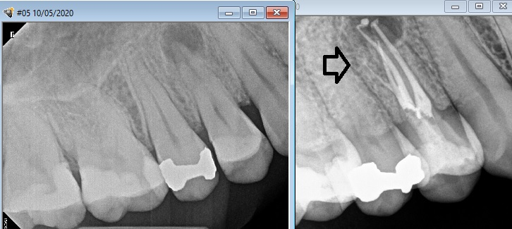 A 4 canal upper premolar root canal