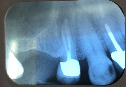 Maxillary root canal with three canals are present about 2% of the time.