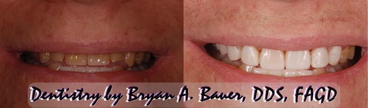 Anterior composite dental veneers are a great way to improve your smile!