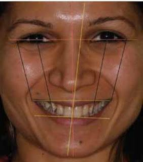 facial-analysis