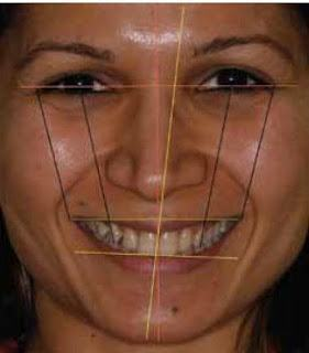 facial analysis smile evaluation
