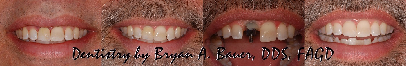 Bridge vs implant pros and cons - Bauer Smiles - Implant vs