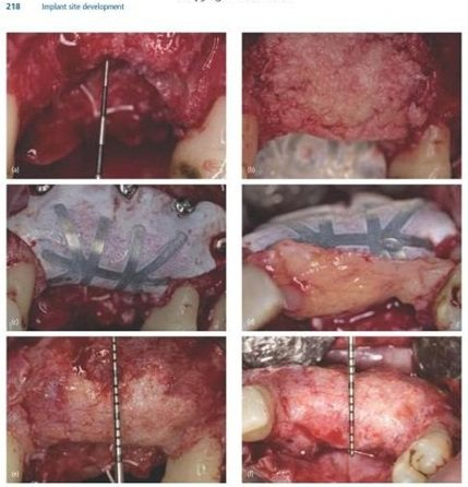 gbr vertical bone graft