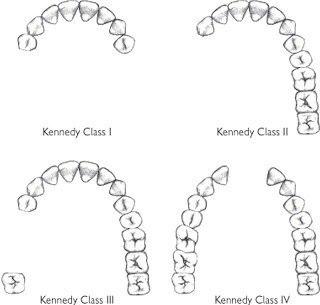 partial denture design
