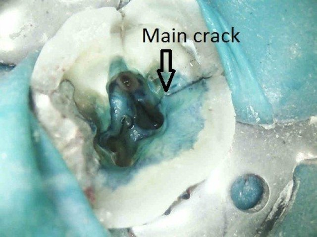 Cracked tooth syndrome