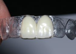 Image of an essix temporary retainer