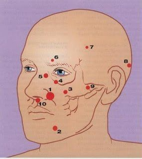Image of atypical odontalgia areas of impact