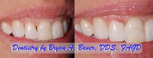 Black triangle with Bioclear