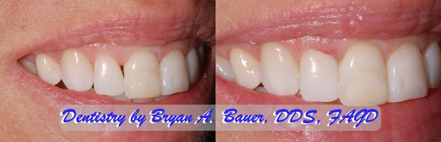 Tooth black triangle removal with Bioclear composite.