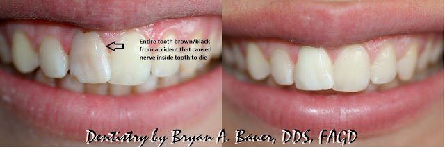 dead brown front tooth