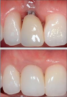 Dental implant showing at gumline repaired with grafting.