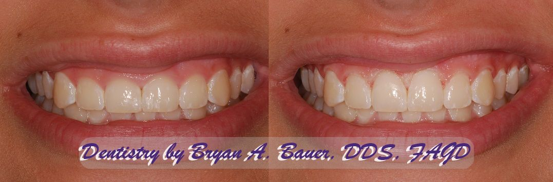 A before and after photo of laser gingivectomy treatment for gummy smile.