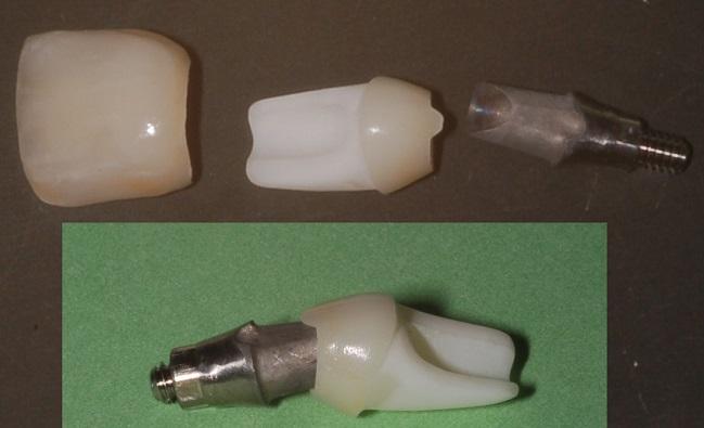 Image of a dental implant hybrid abutment.