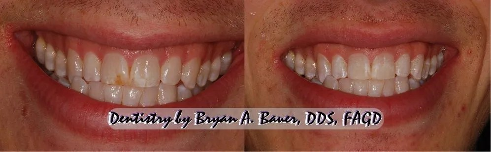 Microabrasion treament of a white spot and a brown spot on the front teeth.