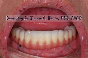 Implant supported zirconia bridge before and after