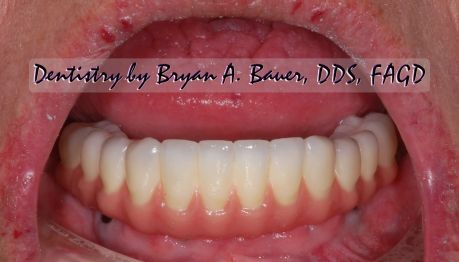 Dental implant temporary needed on front tooth? Choices?