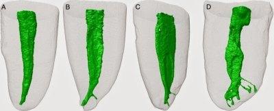 Image of mandibular incisor anatomy