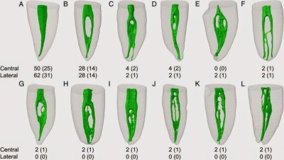 Classification of the mandibular central and lateral incisor