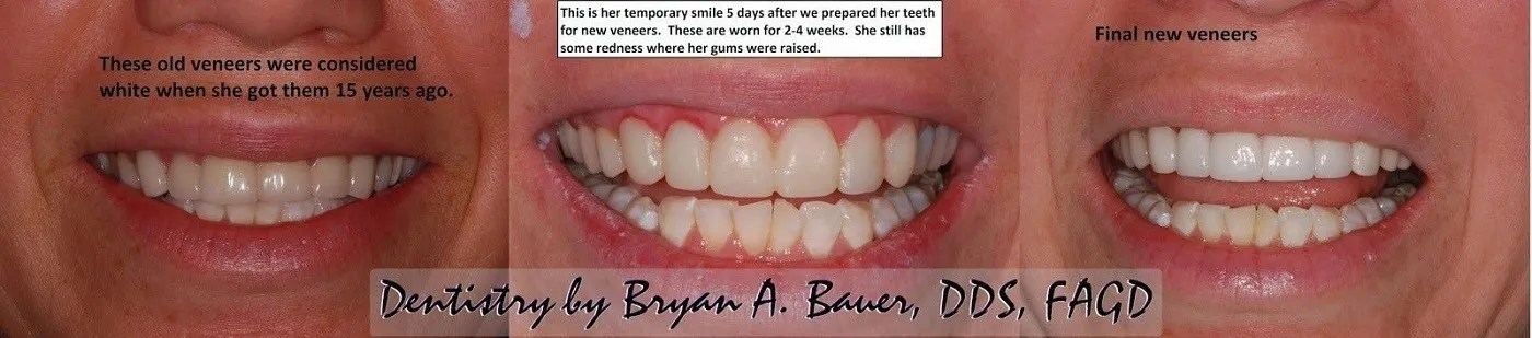 Before and after photos dental veneers