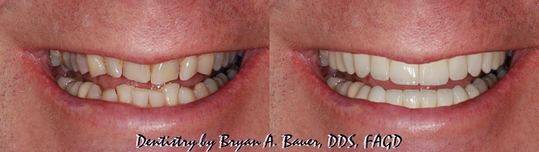 dental veneer workup
