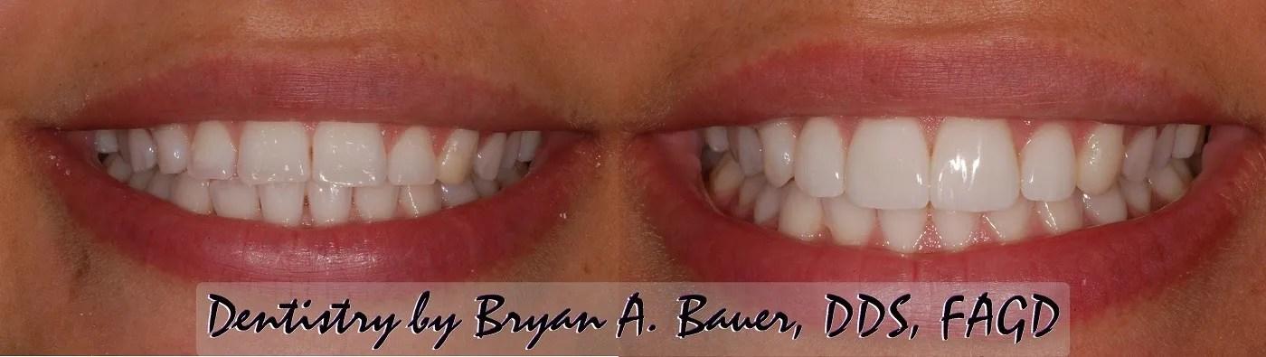 Image of no prep dental veneers
