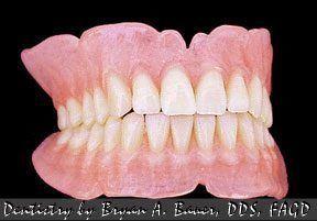 full dentures cost