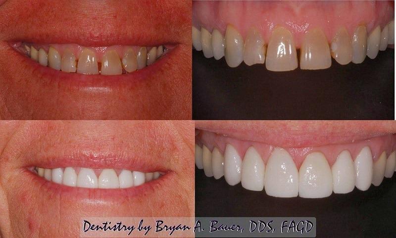 Image of porcelain dental veneers