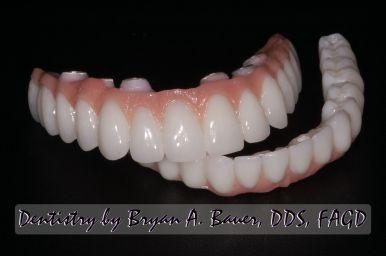 Dental Code Hybrid Denture Locator Denture Code Hybrid