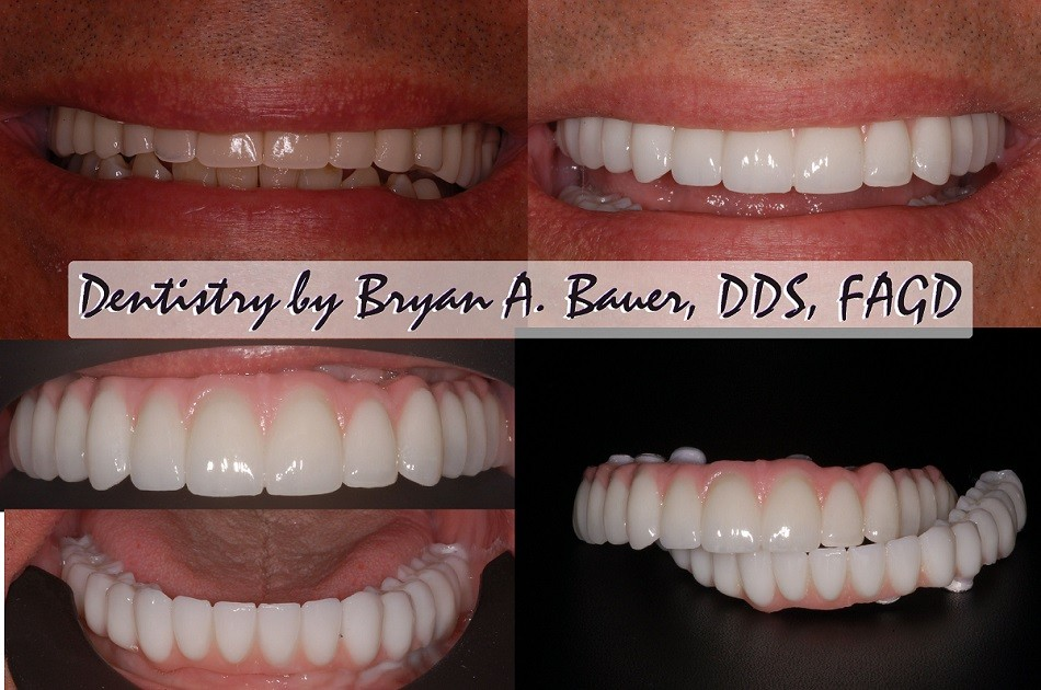 Upgade from implant supported dentures to implant supported bridge