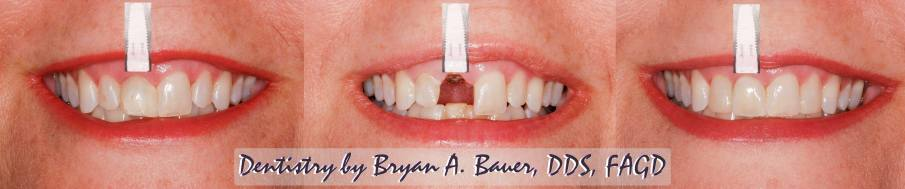Dental implant cost too high