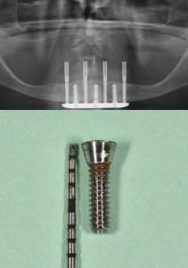 Transmandibular dental implant