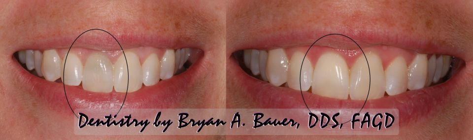 Black front tooth that we were able to whiten with internal bleaching.