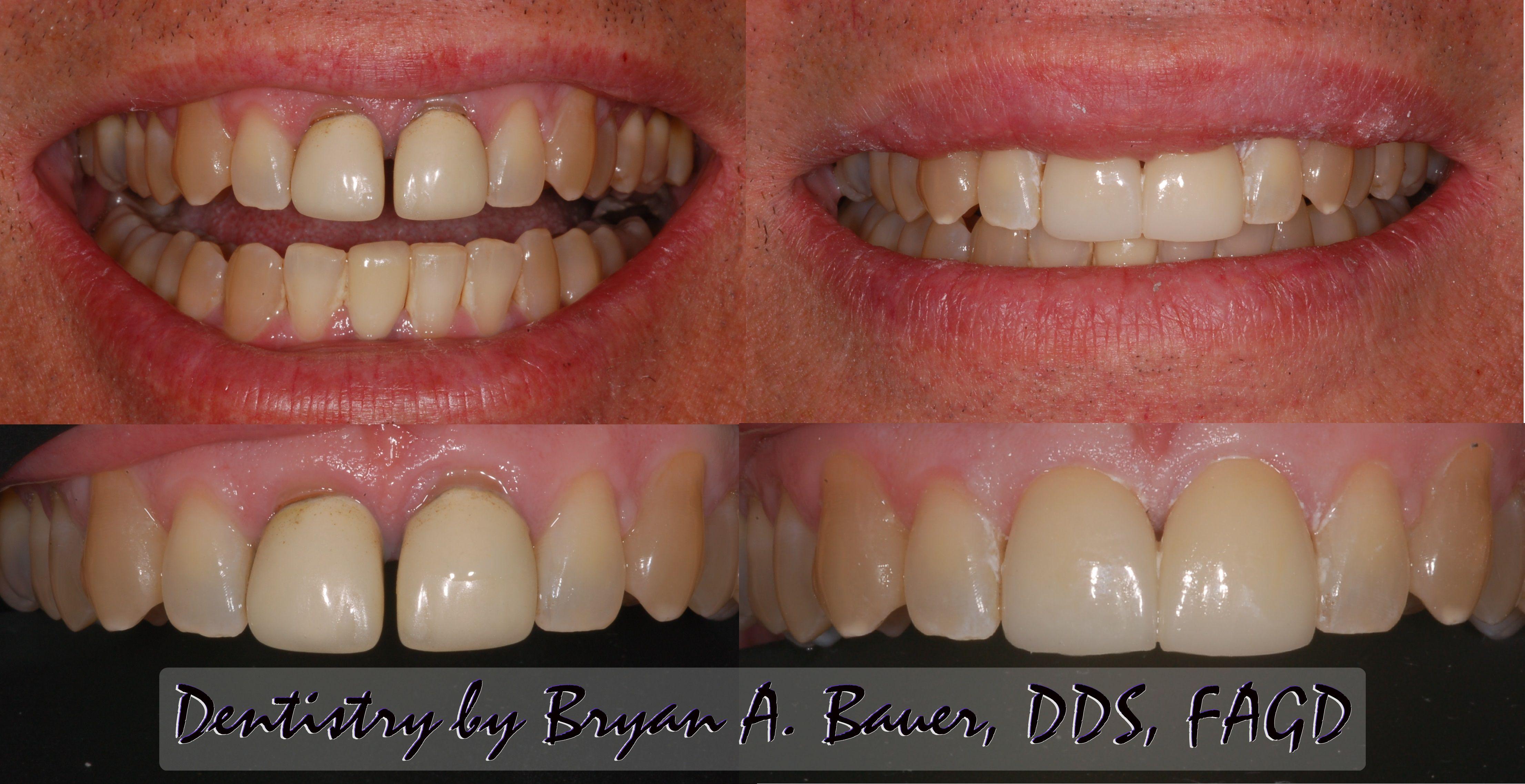 New porcelain crowns - Bauer Smiles