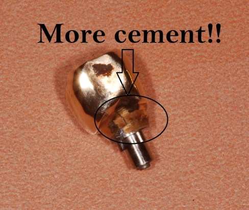 dental implant cement