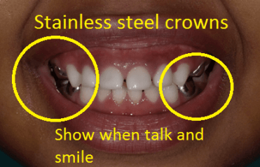 Image of the stainless steel crown alternative