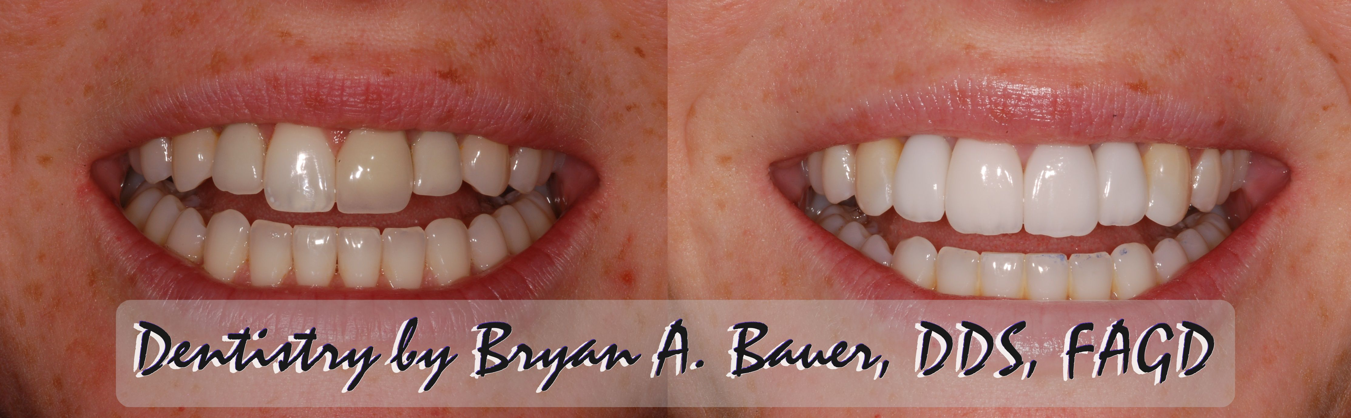 Veneers To Replace Old Misshaped And Miscolored Crowns