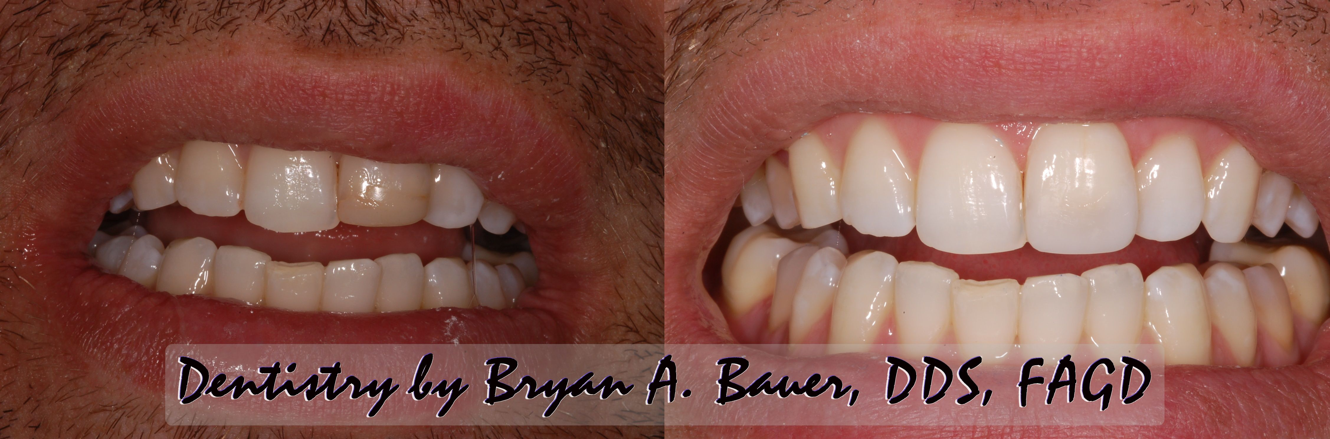 Facial tooth composite